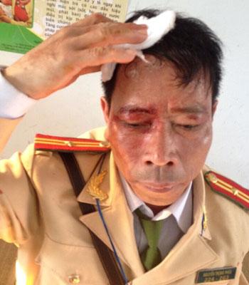 Thiếu tá Nguyễn Trọng Phúc