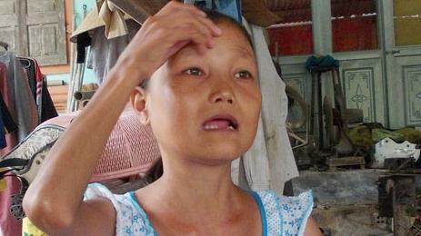 Cô gái cân nặng 25kg có khuôn mặt bà lão và ăn khỏe như lực sỹ