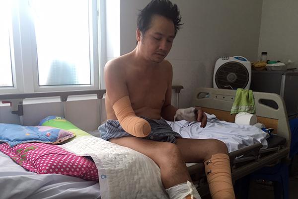 Hoàn cảnh bi đát, tột cùng bất hạnh của người đàn ông mất chân, tay vì điện giật - Ảnh minh hoạ 2