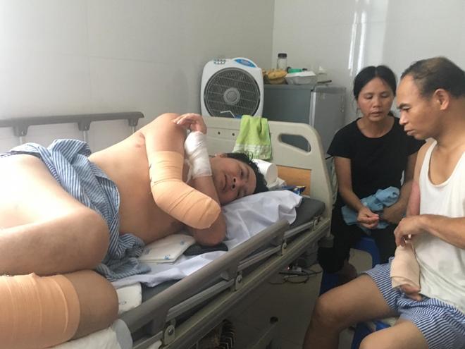 Hoàn cảnh bi đát, tột cùng bất hạnh của người đàn ông mất chân, tay vì điện giật