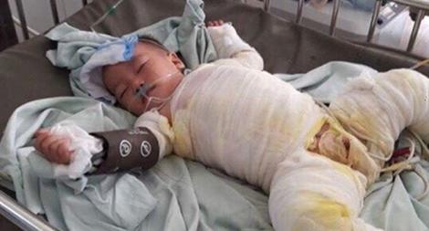 Xót xa cháu bé 20 tháng tuổi bị bỏng nặng