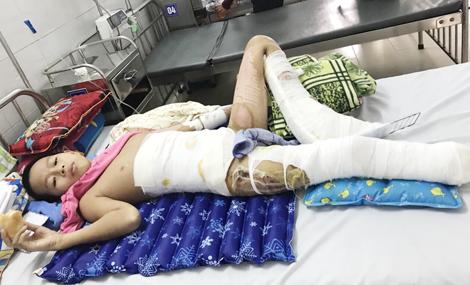 Hãy giúp đỡ cậu học trò nghèo mất một chân vì bỏng điện cao thế!