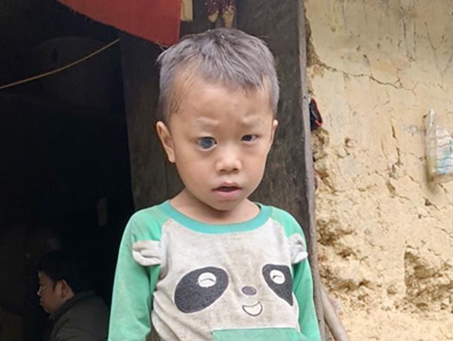 """Cháu bé có bệnh """"mắt ốc nhồi""""ở Hà Giang đã thoát khỏi hiểm nghèo"""