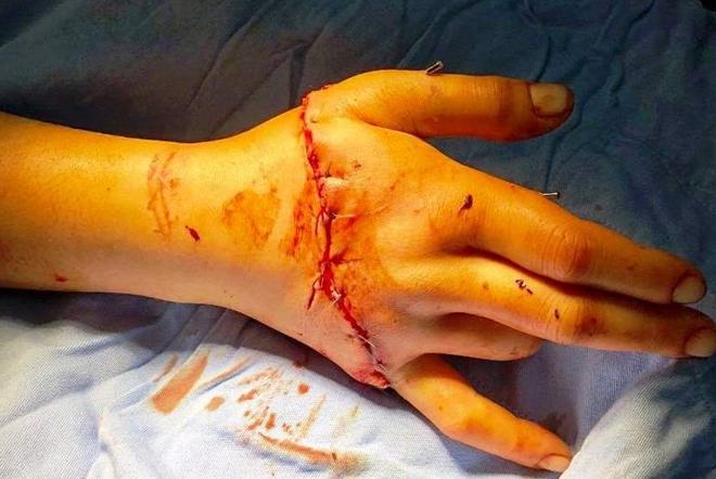 Nối thành công bàn tay đứt rời do bị cưa máy cắt