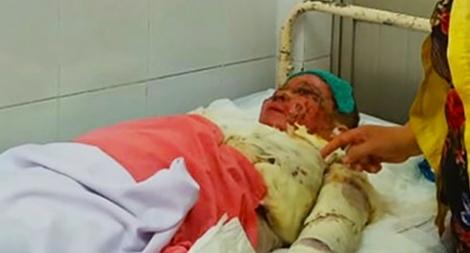 Người phụ nữ bị tình nhân đơn phương tạt acid đã tử vong