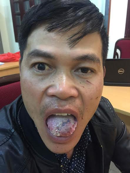 Sau khi thả nạn nhân, tên Quang đã vào bệnh viện khâu lưỡi bị nạn nhân cắn gần đứt
