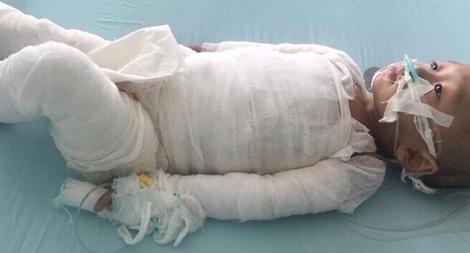 Hãy giúp đỡ cháu bé 18 tháng tuổi bị bỏng 80% cơ thể
