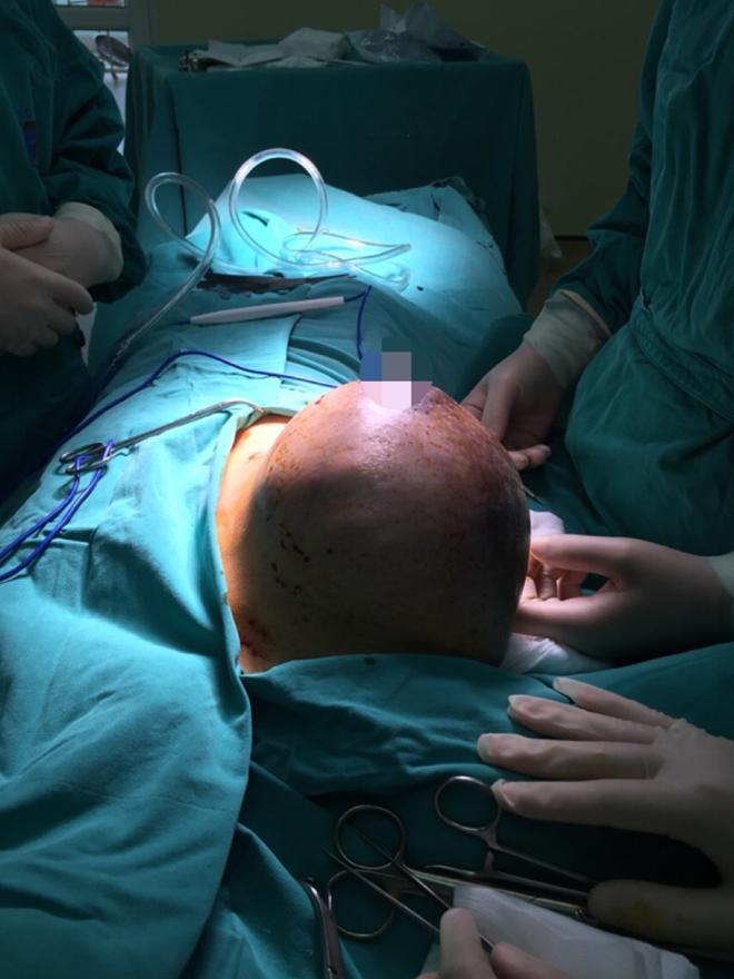 Bệnh viện K: Phẫu thuật thành công u Phyllode tuyến vú rất lớn