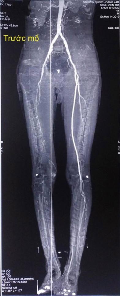 Hình ảnh chụp CT trước phẫu thuật
