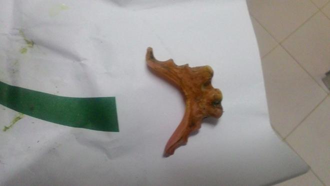 Cần Thơ: Một phụ nữ bị thủng ruột vì nuốt hàm răng giả